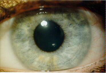 Иридодиагностика схема радужной оболочке глаза 147