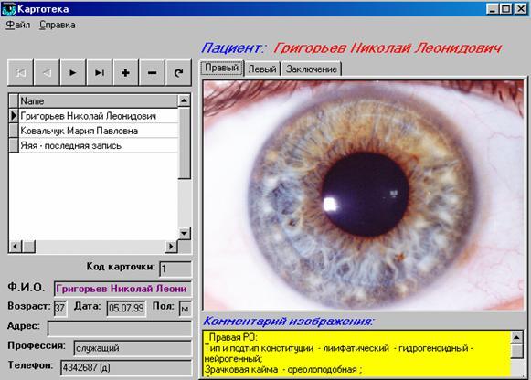 иридодиагностика программа скачать бесплатно - фото 4